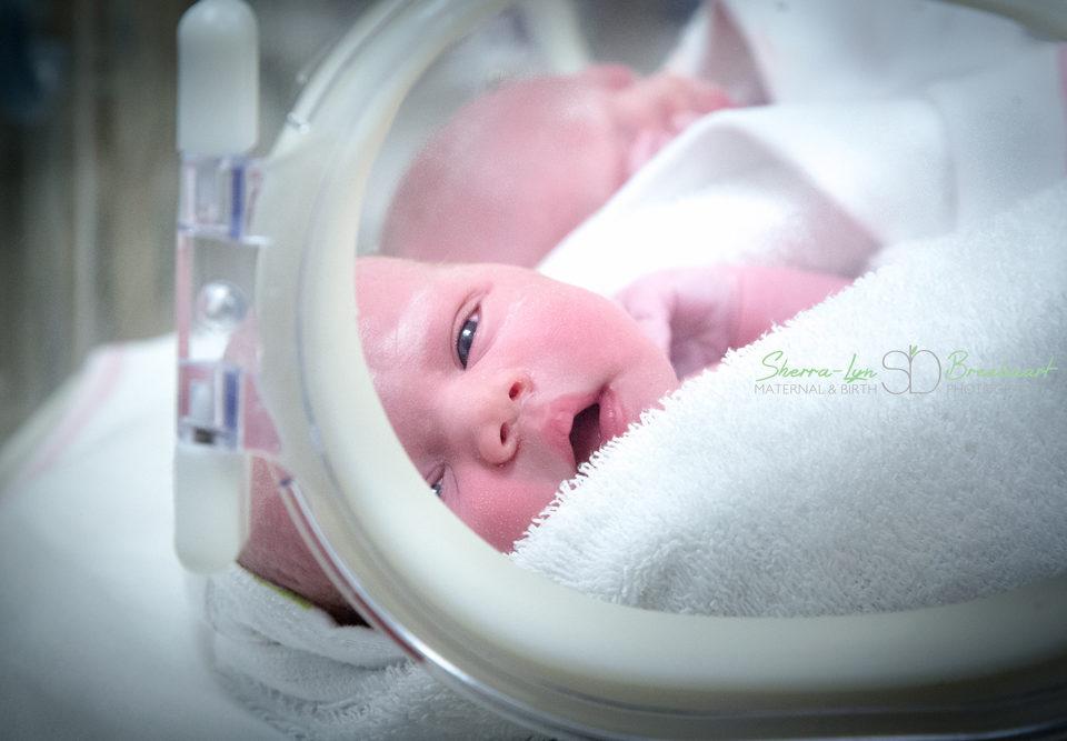 Joubert's Birth
